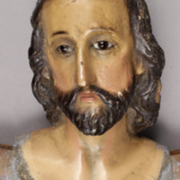 Saint Face Before Treatment.jpg